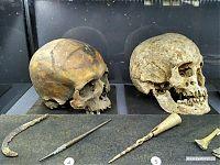 Инструменты средневековой медицины и останки её жертв.
